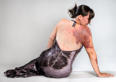 Portrait einer halb liegenden, mit einem Arm abgestützen Frau im Paillettenkleid von hinten mit Feuermal über den halben Rücken. Hintergrund weiß.